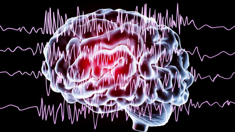 Plus de 700 000 personnes sont concernées par l'épilepsie en France, soit 1% de la population.