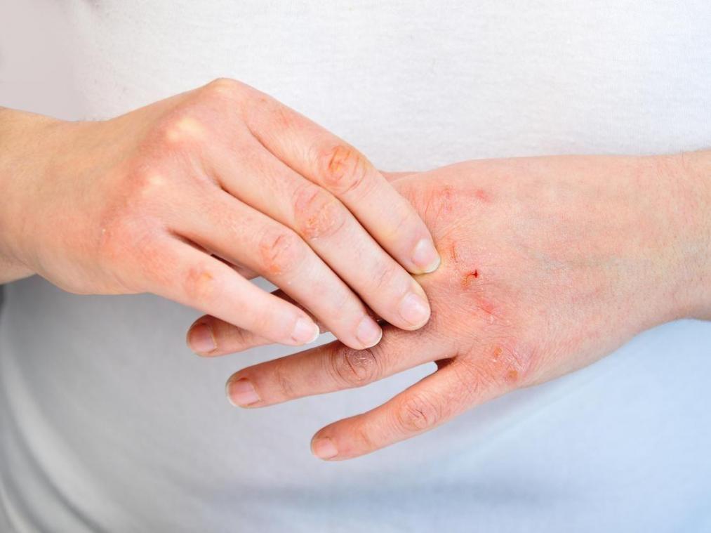 De nouveaux symptômes dermatologiques — Coronavirus