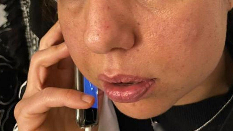 L'Amiénoise, mère de trois enfants, souffre d'un traumatisme facial.